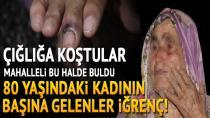 Adana'da sapık kâbusu! Yaşlı kadını bu hale getirdi