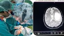 Beyin tümörü 100 binde 5 kişide görünüyor!
