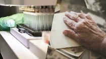 ''Tarihi an'' diye duyurdular! Alzheimer ilacı ilk kez denendi, tıp dünyası ikiye bölündü